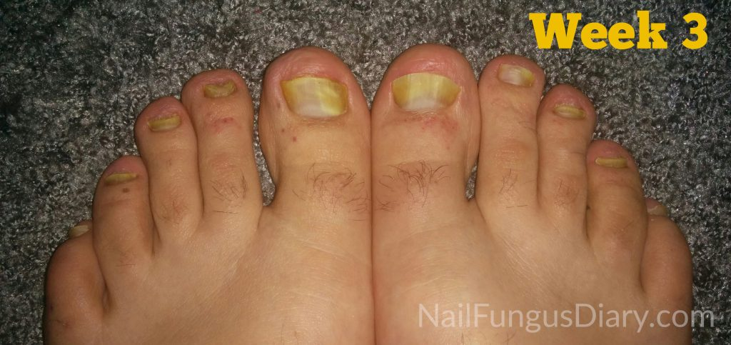 Nail Fungus Treatment Picture 4