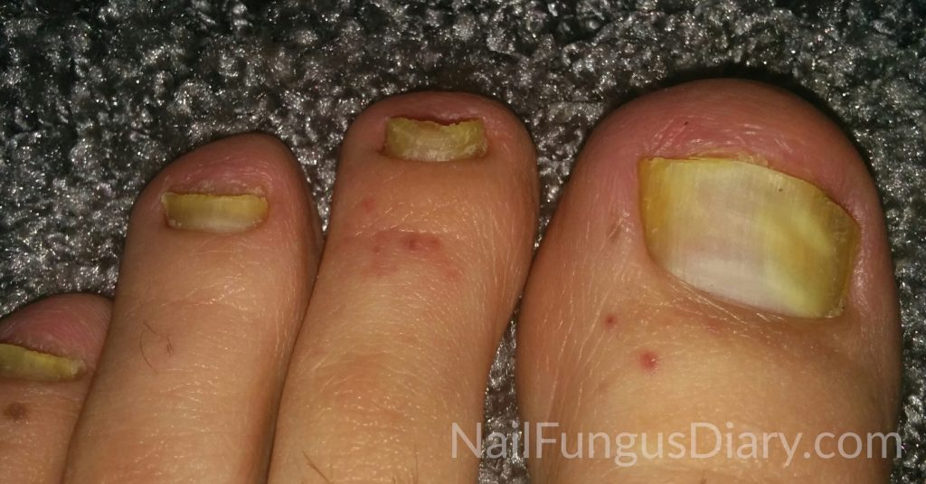 Nail Fungus Treatment Picture 5