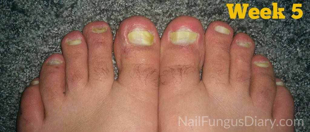 Treating nail fungus with Kerasal and tea tree oil - week 5