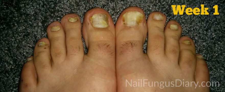 Nail Fungus Treatment Picture 1