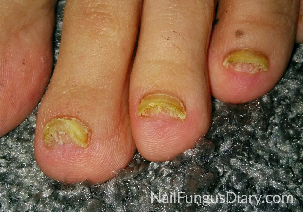 Nail fungus before picture