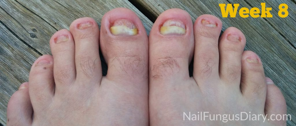 Kerasal and Tea Tree oil for nail fungus week 8