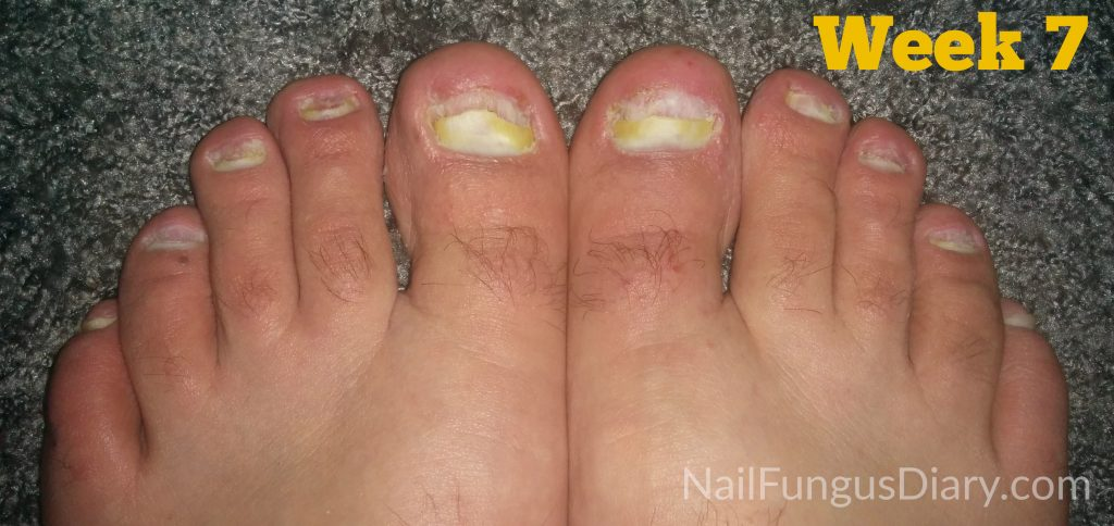 Nail fungus is being cured