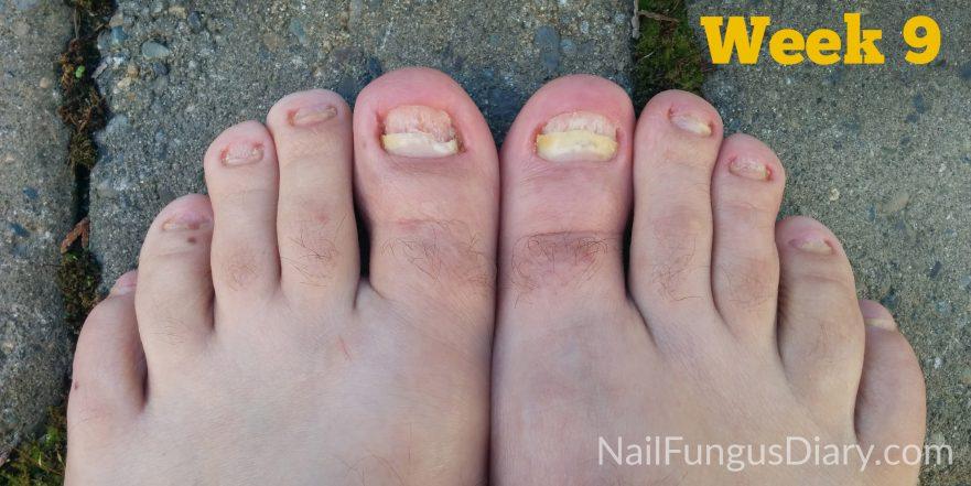 Nail fungus week 9