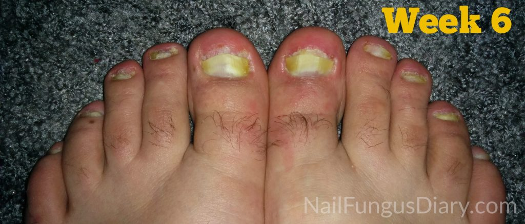 Tea tree oil for nail fungus week 6
