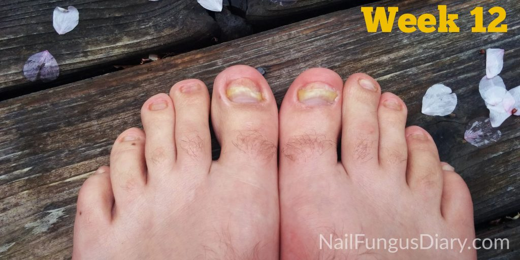 Nail fungus treatment with kerasal tea tree and coconut oil
