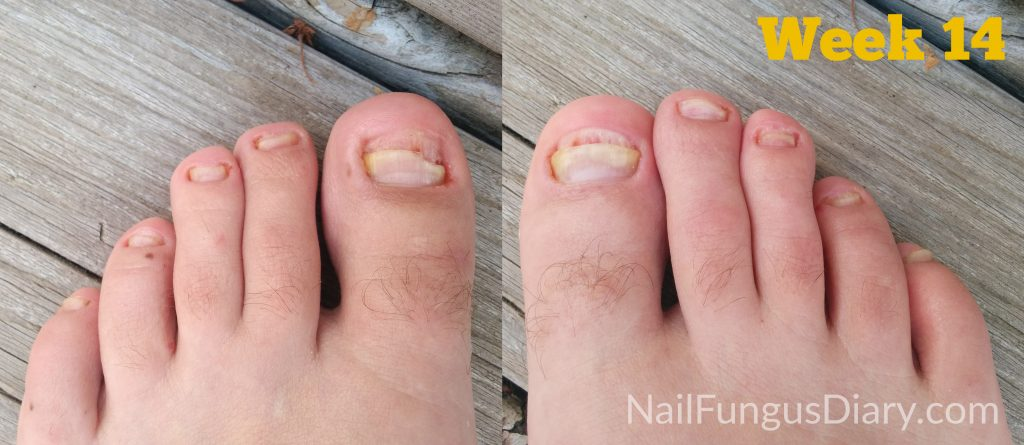 Nail fungus week 14 (tea tree oil and Kerasal)