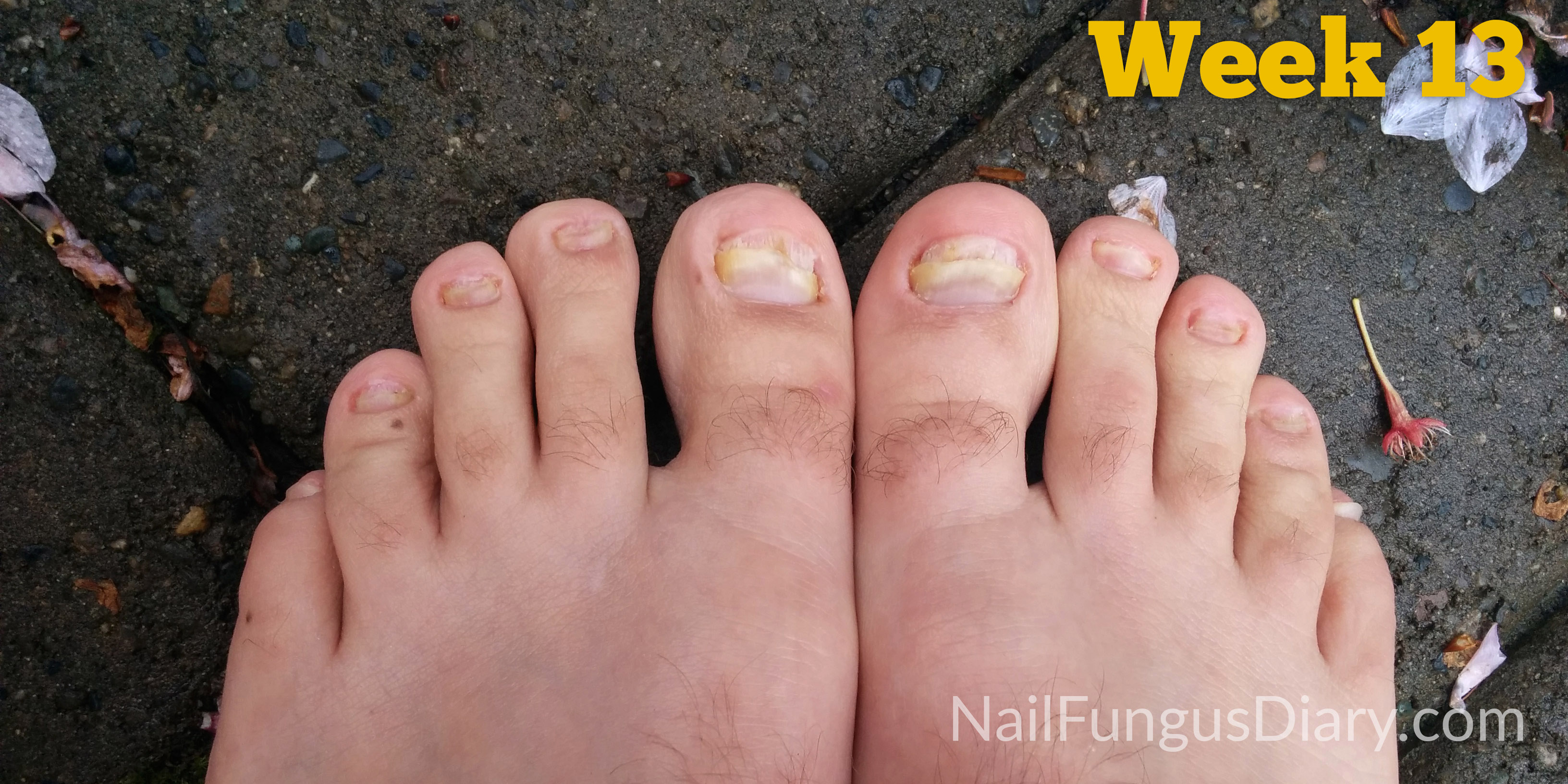 Onychomycosis: Pathogenesis, Diagnosis, and Management