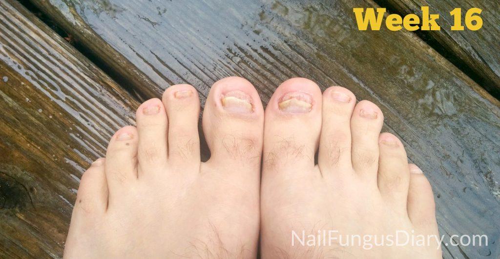 Treating nail fungus with Kerasal and tea tree oil week 16