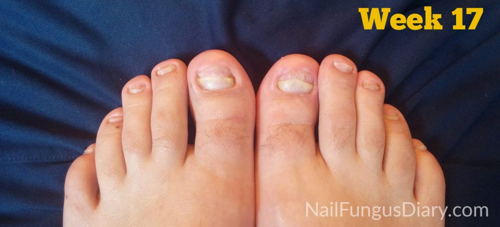 Nail fungus treatment with kerasal, tea tree oil, and coconut oil: week 17