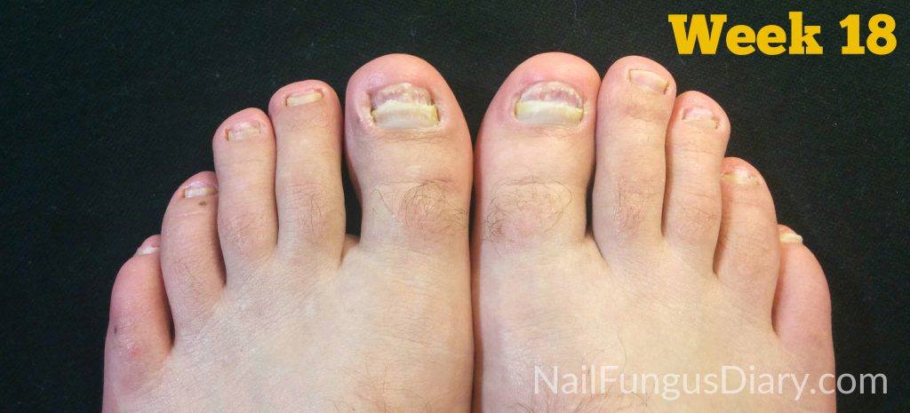 nail fungus treatment week 18