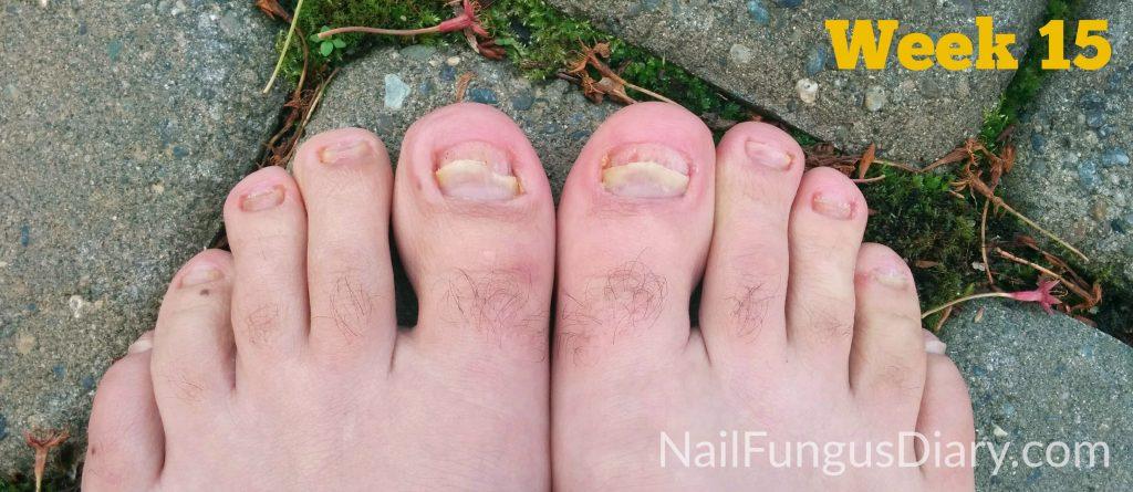 tea tree oil for nail fungus week 15