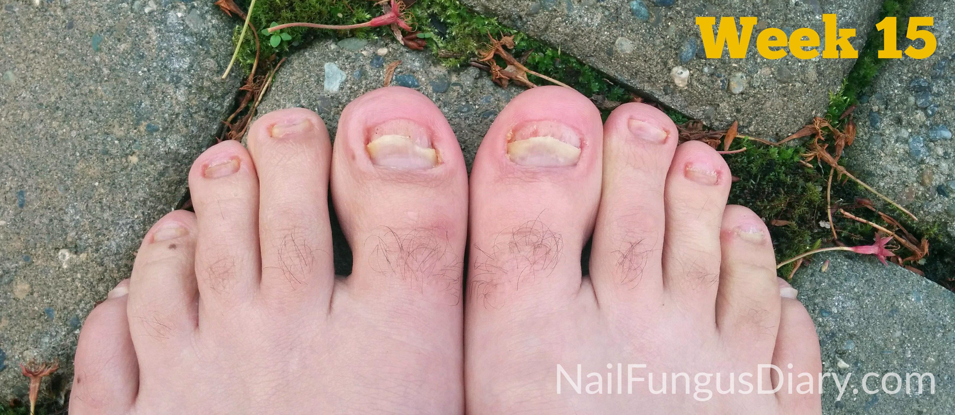 Nail Fungus Update, April 2015 - Nail Fungus Diary