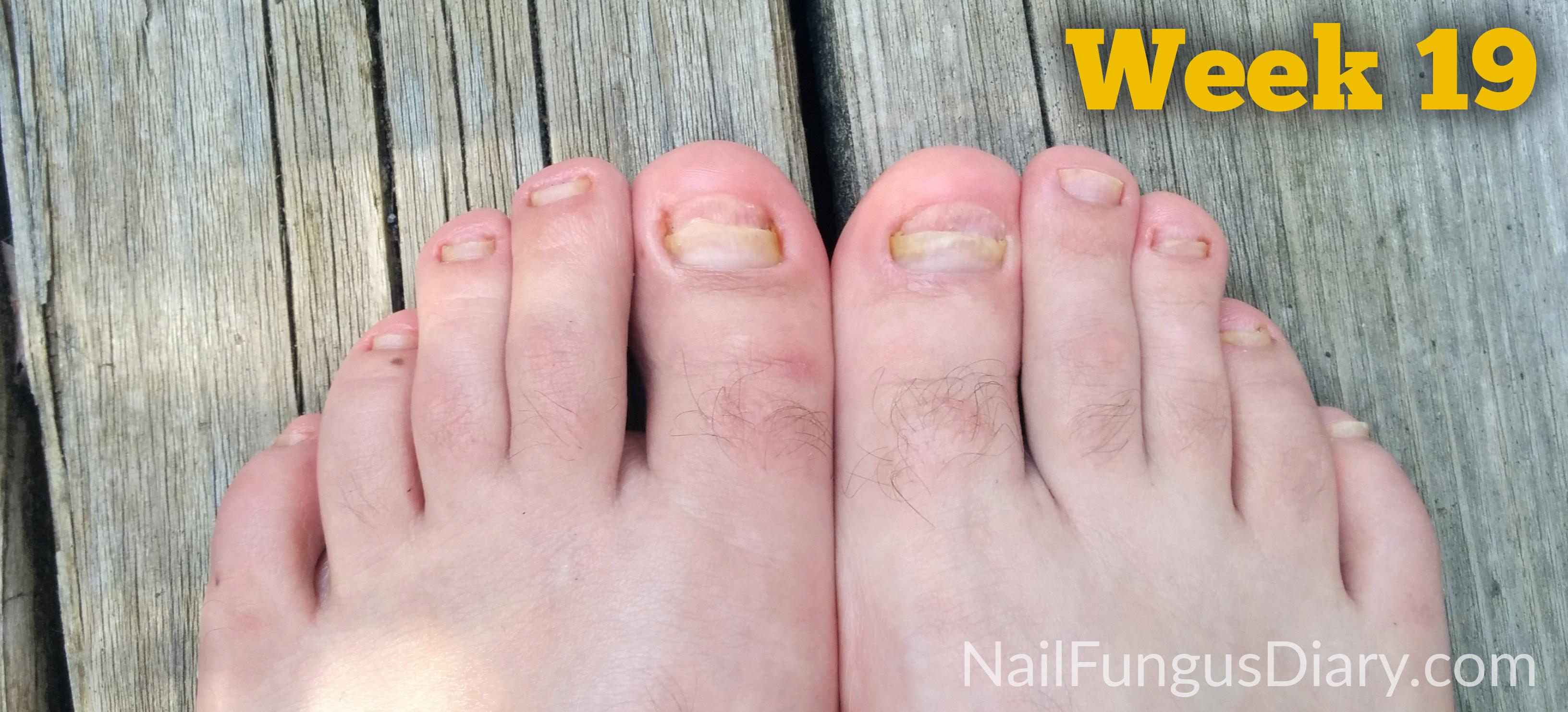 Nail Fungus Update, May 2015 - Nail Fungus Diary