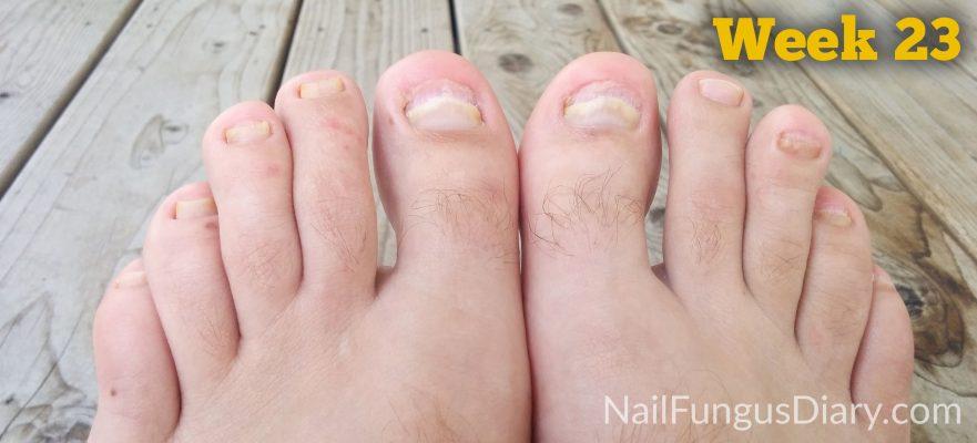 Nail fungus update week 24