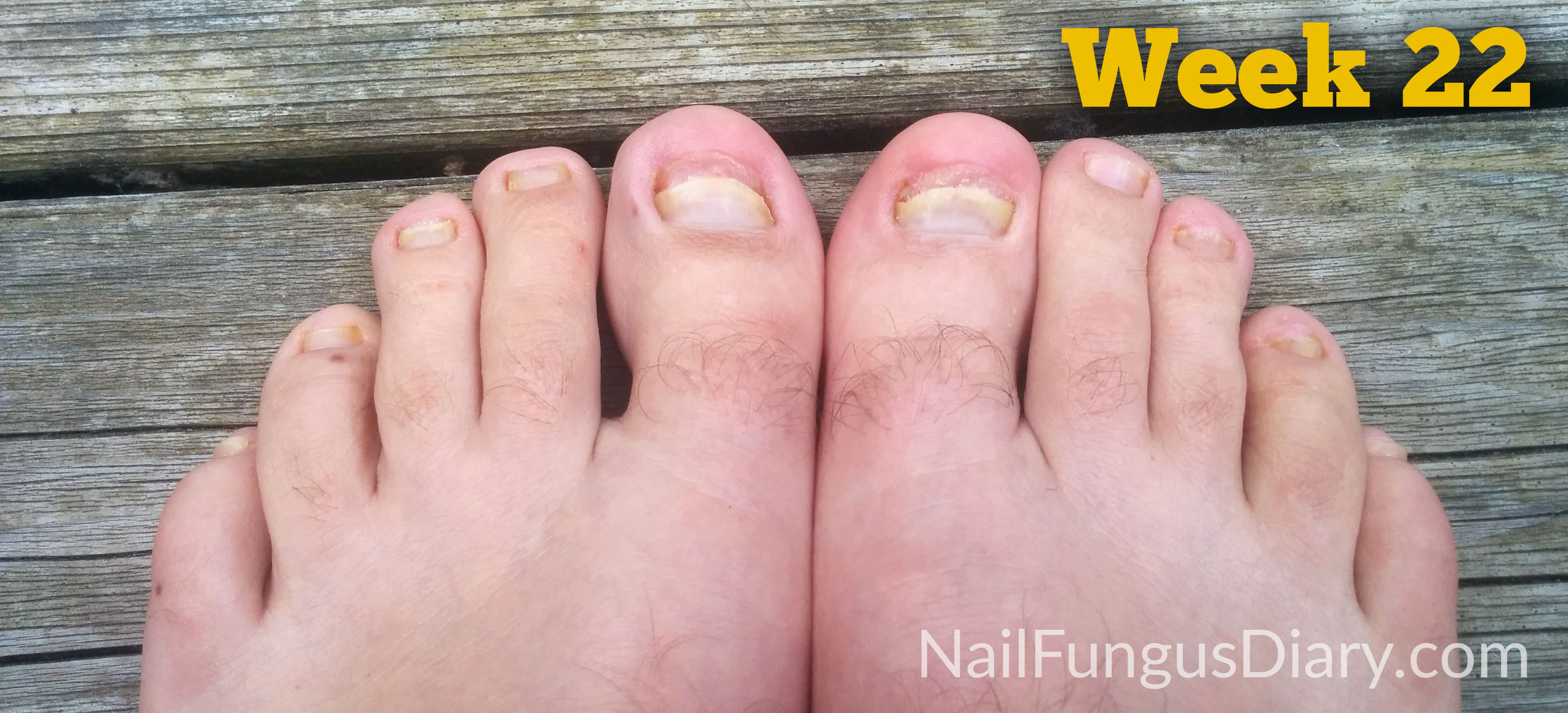 Nail fungus remedy week 22 picture
