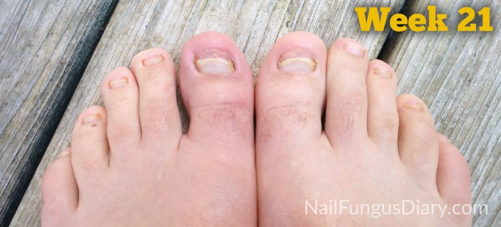 nail fungus diary week 21