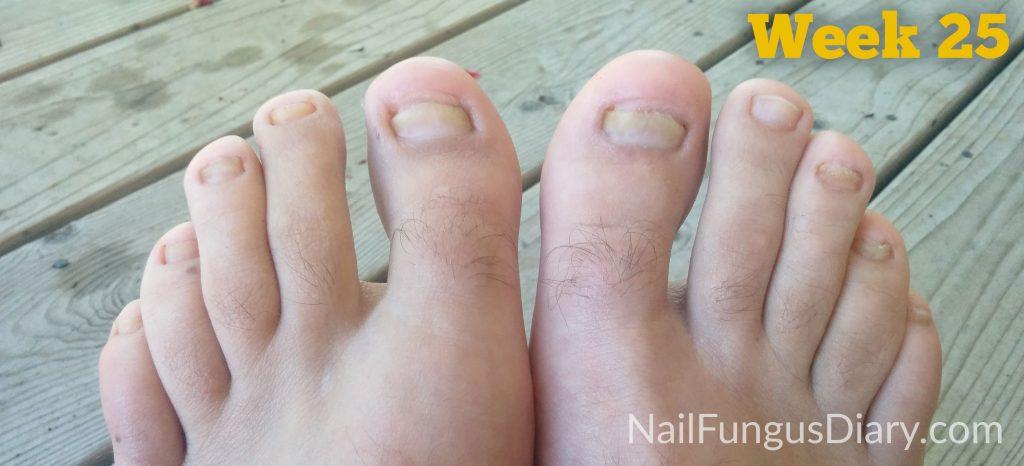Week 25 nail fungus remedy, tea tree oil