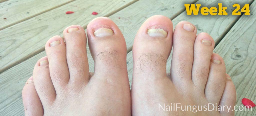 nail fungus home remedy week 24