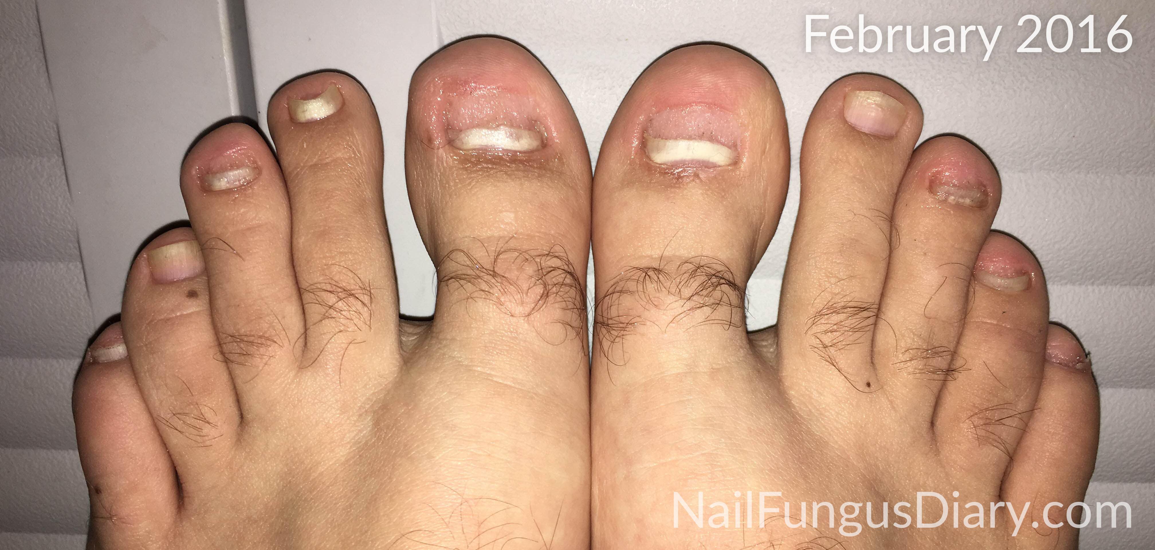 Nail Fungus Update, February 2016