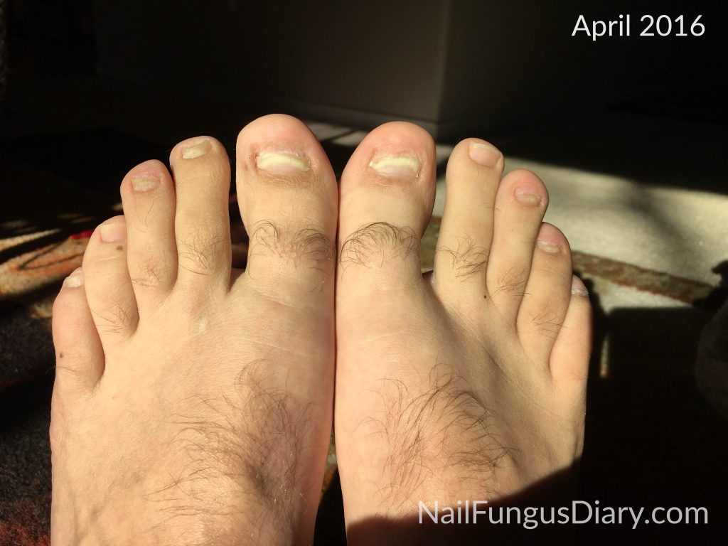 My toenails, April 2016