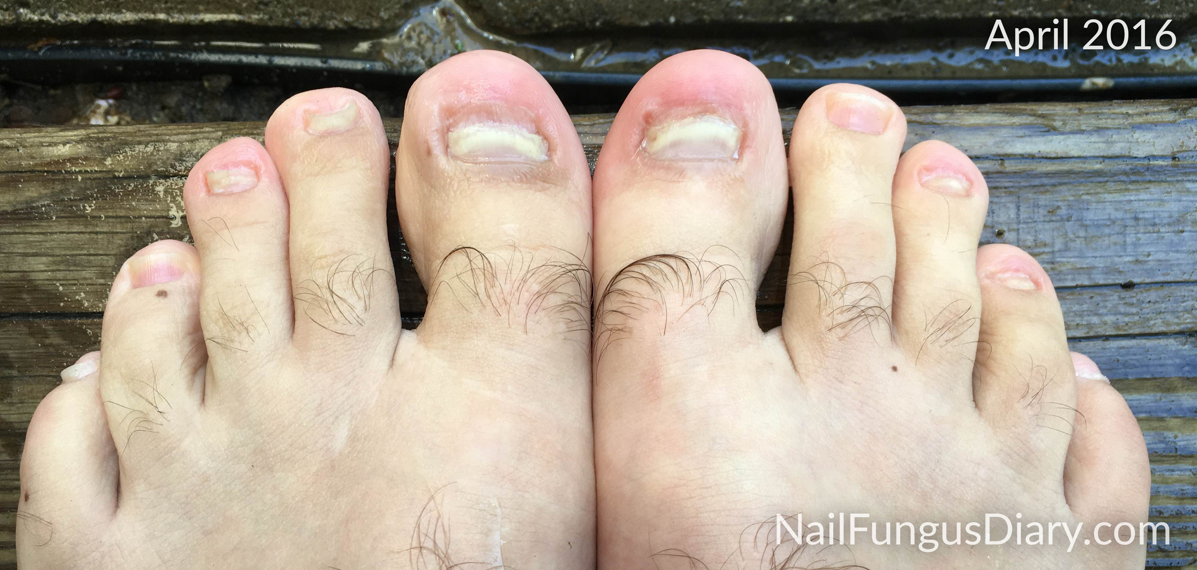 Nail Fungus Update, April 2016 - Nail Fungus Diary