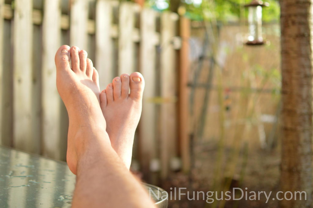 Go barefoot to fight nail fungus