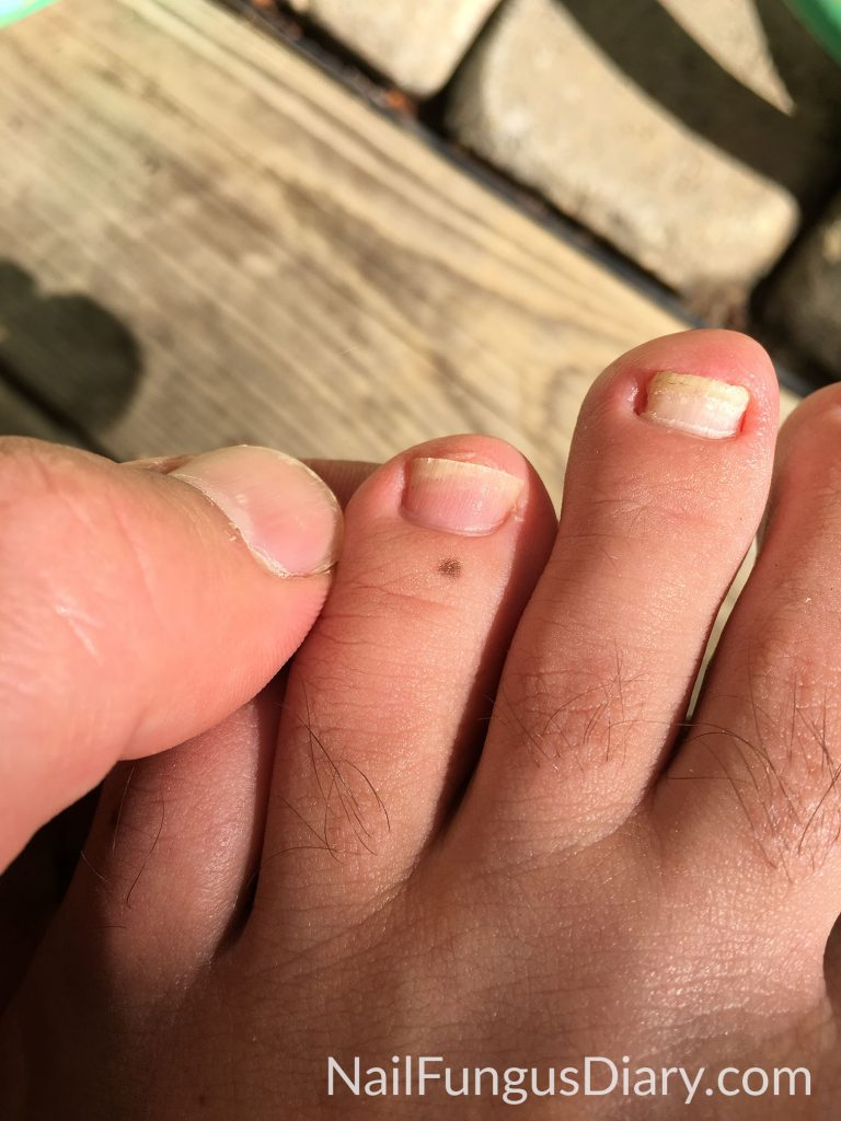 Fungus free nail after cutting