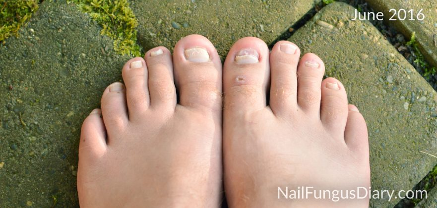 nail fungus update June 2016