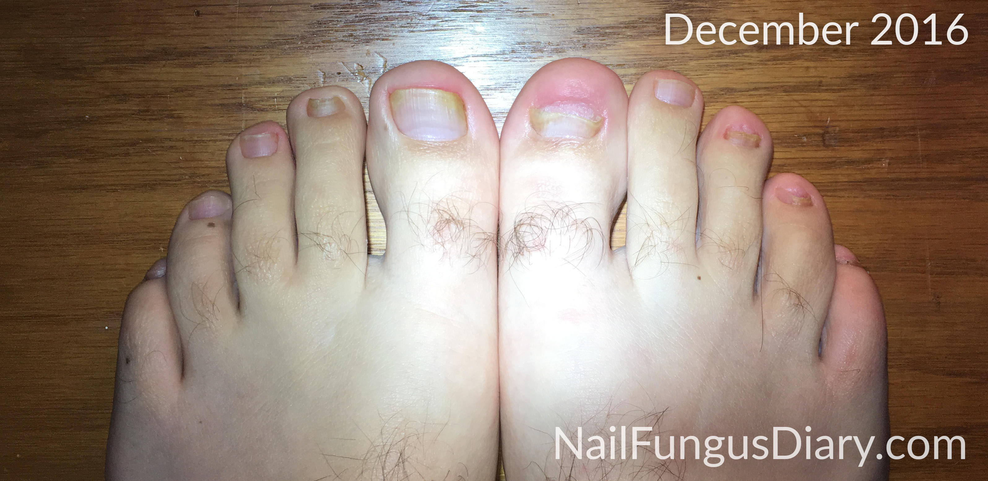 Nail Fungus Update, December 2016 - Nail Fungus Diary