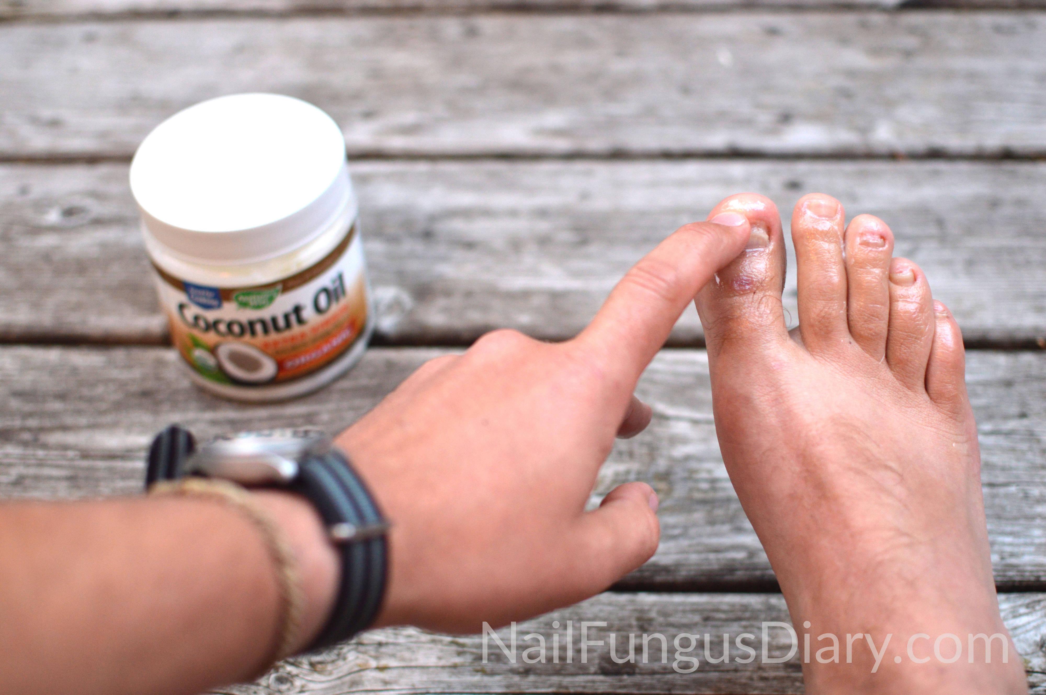 Nail Fungus Update January 2015 Nail Fungus Diary