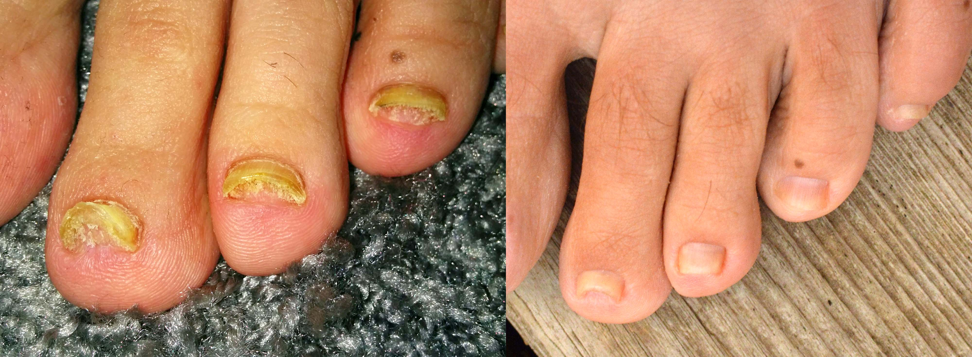 Nail Fungus Before And After Picture