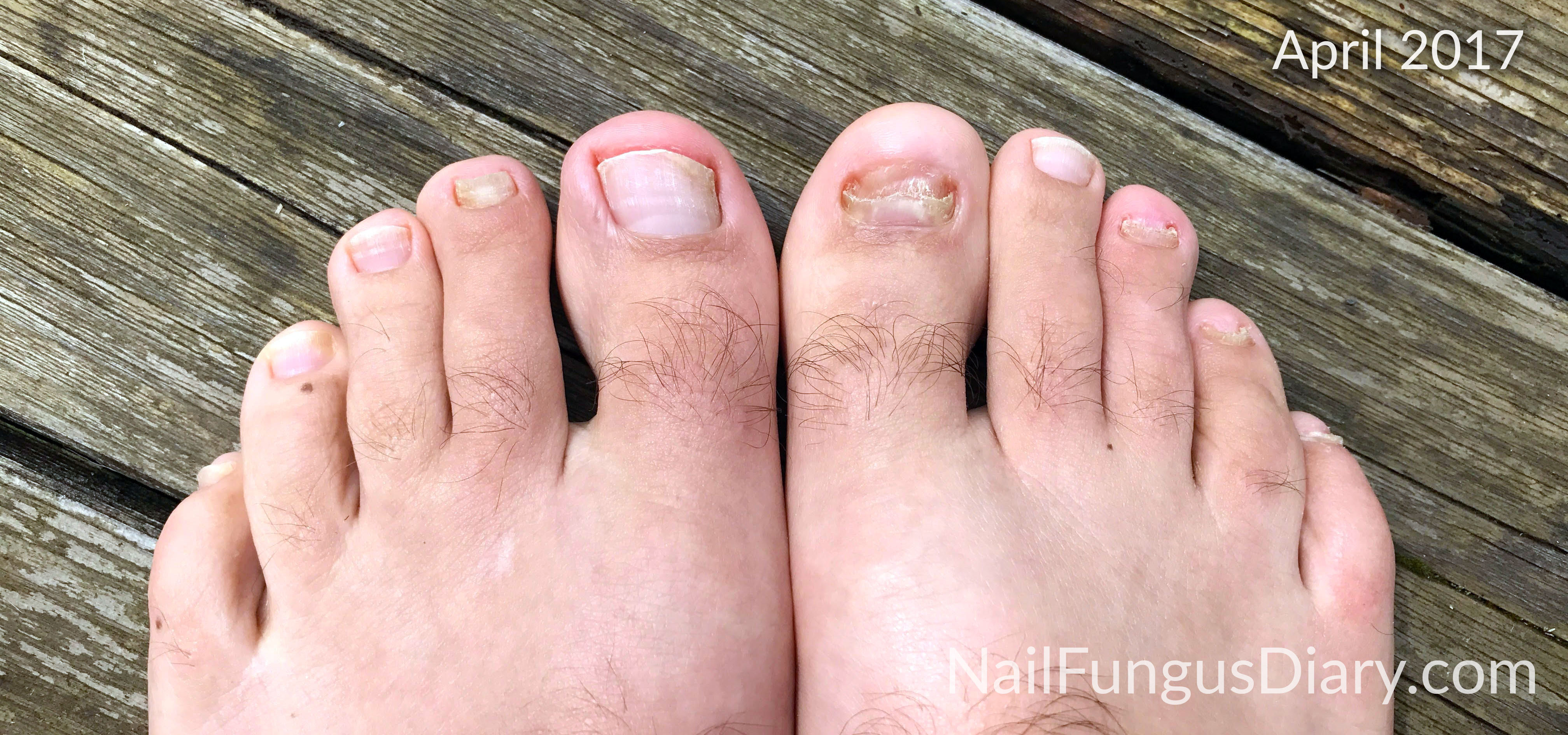 Nail Fungus Update, April 2017 - Nail Fungus Diary
