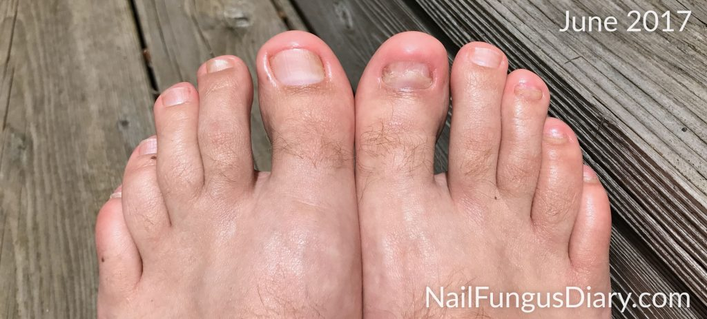 June 2017 tea tree oil for nail fungus picture