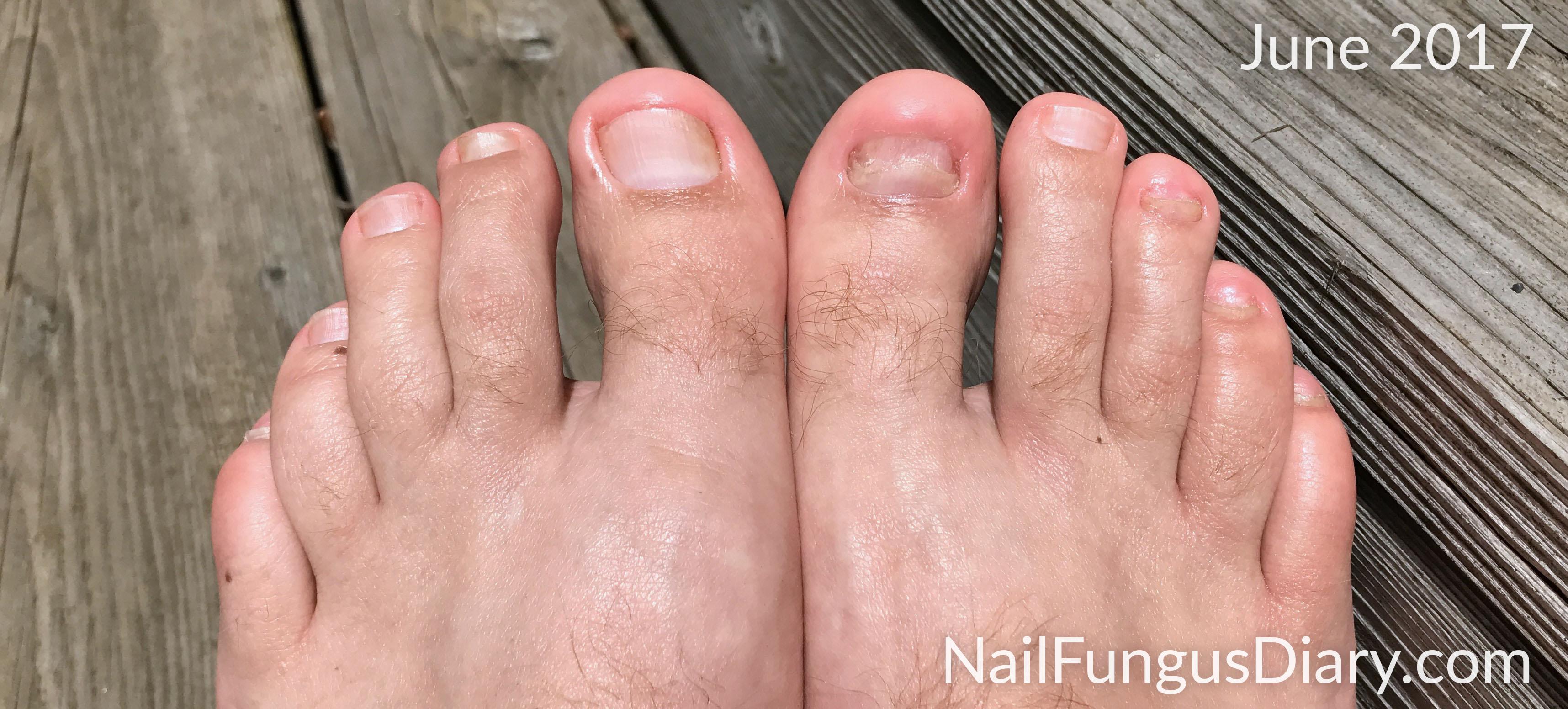Nail Fungus Update, June 2017 - Nail