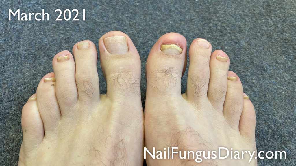 Tea tree oil for nail fungus results, March 2021