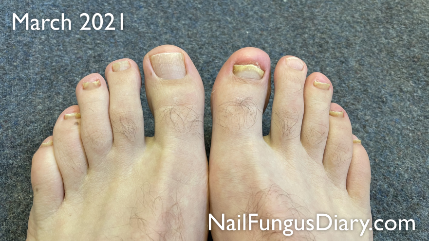 Nail fungus update March 2021